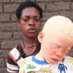 "Edna Cedrick,26, holds her surviving albino son after his twin brother who had albinism was snatched from her arms in a violent struggle in this Tuesday, May, 24, 2016 photo in Machinga about 200 kilometres north east of Blantyre Malawi. Cedrick says she is haunted daily by images of the decapitated head of her 9 year old son.At least 18 Albino people have been killed in Malawi in a ""steep upsurge in killings"" since November 2014, and five others have been abducted and remain missing, a new Amnesty International report released Tuesday, June 7 2016 says."