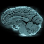 Image of a brain with blue wash