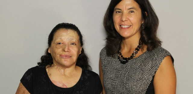 After a dark period, survivor of acid attack finds strength to go on