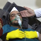 A Syrian man receives treatment following a suspected toxic gas attack Tuesday in Khan Sheikhun, a rebel-held town in Syria's northwestern Idlib province. At least 58 people were killed, including a number of children.