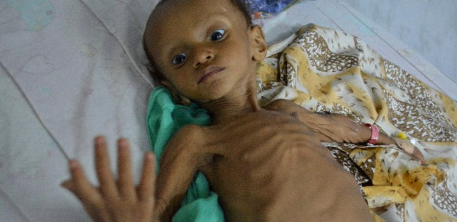 FILE- In this Sept. 9, 2016 file photo,, a boy who suffers from malnutrition lies on a bed at a hospital in the port city of Hodeidah, southwest of Sanaa, Yemen. Saudi Arabia said Sunday, Jan. 21, 2018 that the coalition it is leading in Yemen will provide $1.5 billion in new humanitarian aid for international relief organizations working in the impoverished country. It comes as aid groups say coalition airstrikes are destroying critical infrastructure and that the coalition needs to do more to facilitate the delivery of fuel, food and medicine at Yemeni ports.