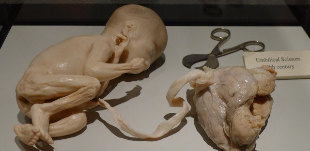 Museum documents evolution of surgical practices