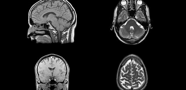 An MRI of a head. Experts say after a concussion, many people do not get the proper tests.