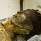 Egyptian Mummies Diagnosed With Clogged Arteries