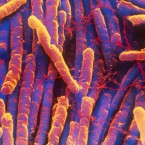 C. diff infections, which rose for decades, are now falling, according to the CDC.